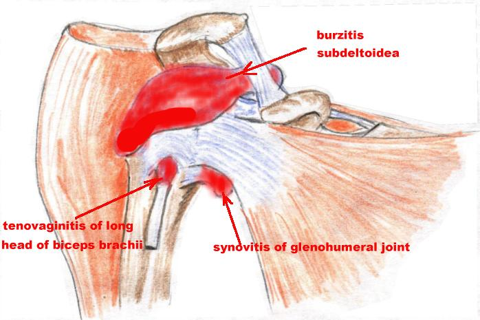 Pathology Of Bursae Shoulder Girdle